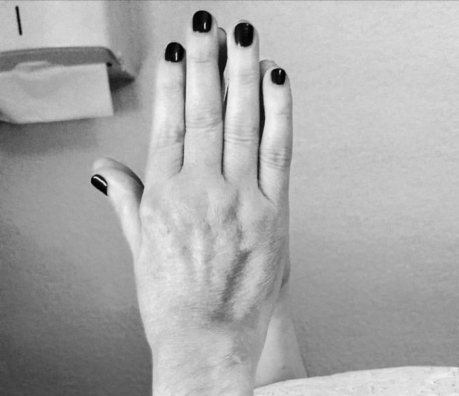 manos-dolor-anna-colom-3